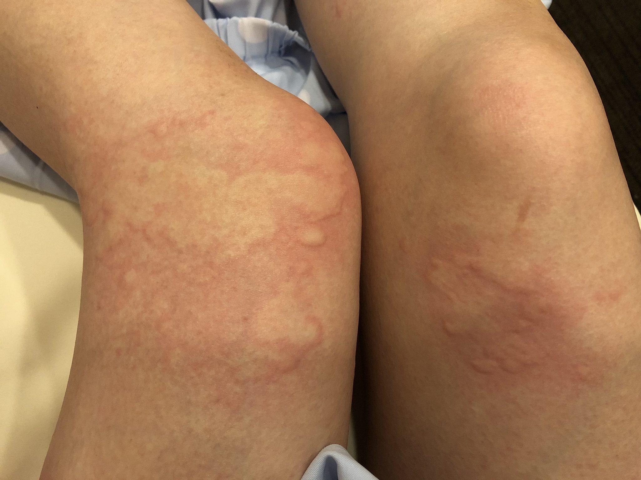 リトドリン蕁麻疹3